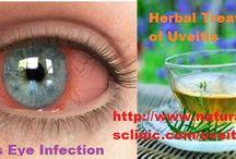 Uveitis Natural Treatment