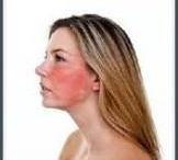 Facial Cellulitis Treatment