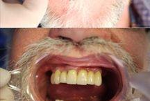 Dentistry / Dental works