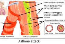How Many Children Outgrow Asthma - Research Findings, Images / Asthma