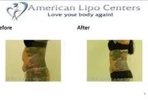 Laser Liposuction New York City / Find affordable laser liposuction in NYC. Check out our before and after photos.
