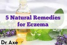 Eczema (natural healing)