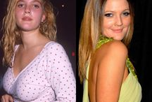 Celebrity Breast Reduction / Pictures of celebrities before and after breast reduction surgery!