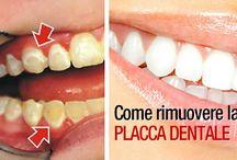 Rimuovere la placca dei denti