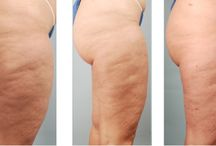 Cellulite / Before and after photos of Toronto patients who have underwent a cellulite reduction treatment at SpaMedica