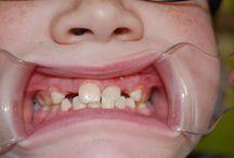 Dentaltown Learning Live Dr Josh Wren Pediatric Dental Pearls