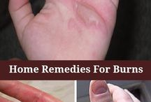 remedies for burns