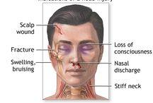 traumatic head injury