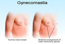Best Gynaecomastia Surgey in India / Dr. Kashyap is a best cosmetic surgeon in Delhi India offers best gynecomastia surgery, awake gynecomastia surgery, awake male breasts surgery and liposuction in India.
