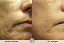 Nerium Before and After / I love this product! To learn more, message me or visit www.nerium.com/tammyhelfrich