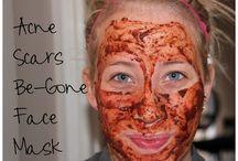 Beauty: Acne