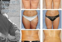 Liposuction or Liposculpting Body Contouring / Liposuction also called Liposculpting is ideally suited to eliminate bulges of fat from different areas of the body with minimal scarring and quick recovery times.
