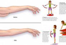 Ćwiczenia ramiona