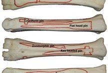 bone hand grave