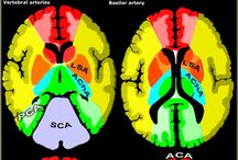 Neurorradiologia