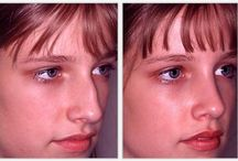nose before after - naso / nose surgery  - chirurgia plastica del naso  pima e dopo before and after