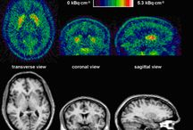 Open Medscience / Journal of Diagnostic Imaging in Therapy (JDIT) publishes articles on the application of Diagnostic Imaging based on radionuclides, X-rays, MR and ultrasound. These imaging modalities include: PET, SPECT, hybrid imaging systems, radioguided surgery (RGS), positron emission mammography (PEM), MRI, CT and planar X-ray. Also included is the application of short and long-lived radioisotopes in research and development of imaging agents and targeted therapies.