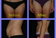 Body Contouring / Learn about our body contouring procedures! Visit our website or contact us today to learn if you are a candidate! www.hassplasticsurgery.com or (561) 624-7777