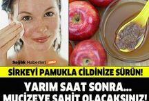 sirke elma