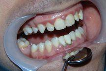 Tratamente si proceduri stomatologice / Tratamente si proceduri stomatologice