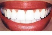 Home Teeth Whitening / Do it at home.