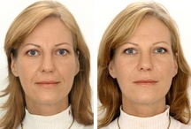 Other Cosmetic Procedures