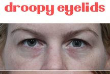 droopy eyelids