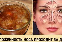 насморк лечение