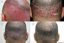FUE Hair Transplant / Follicular Unit Extraction (FUE transplant) is the latest technique for hair transplant. FUE hair transplant is best and easiest way of hair transplant.