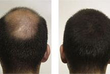 KeraFiber Results / http://www.kerafiber.com/hair-fiber-customer-reviews-testimonials.aspx