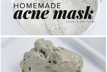 Acne masks