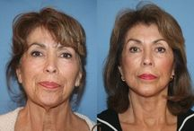 Face Aerobics Remedies For Age-Reversal And Face Line Minimization / Appear More Youthful With Face Gymnastics Exercises: Ultimate Biological Facelifts