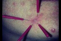 Acupuntura Estética / Tratamientos de estética con Acupuntura y Medicina Tradicional China.