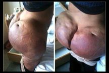 Nope! Just nope! / Surgery gone wrong Gross Wtf Omg