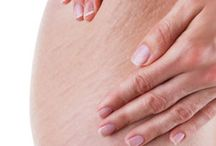Stretch Mark Removal Tips