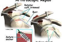 Shoulder surgery before/after tips info