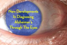 Alzheimers/Dementia