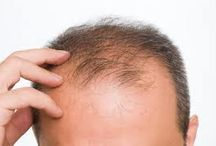 Easy Hair Loss Cure / Hair loss and baldness is a common problem in our society. A number of men are facing hair problems and seeking for help...