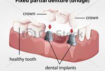 Bridges Dental Care Potomac MD, Dental Bridges, Dental Treatment MD / Potomac MD Dental bridges: Types, procedure benefits, and care. Crowns and Bridges MD, Bridges Dental Practice Potomac MD, Dental bridge Maryland MD dental bridges in Potomac maryland bridge - Standard Dental Care