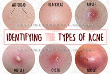 About Acne