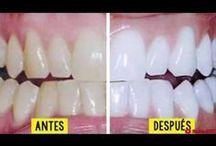 blanqueo de dientes