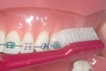 Caring for your braces!