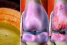 za bol u kolenima