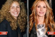 Celeb Before and Afters / Celeb Before and Afters (I think most of them had rhinoplasty)