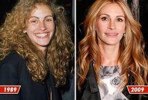 Celeb Before and Afters / Celeb Before and Afters (I think most of them had rhinoplasty)