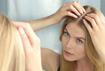 Affordable Non-Invasive Hair Loss Treatment For Women