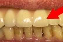 Přípravek na  zuby