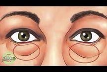 Bolsas bajo los ojos
