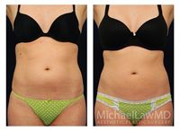 Liposuction at Michael Law MD Aesthetic Plastic Surgery