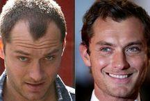 Famosos que se han hecho un trasplante de pelo / El antes y el después de personajes famosos que los medios han publicado que  se han realizado un trasplante de pelo